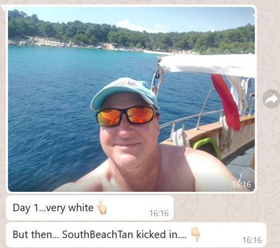 South Beach Tan - Before